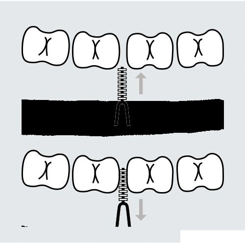 cepillado dental