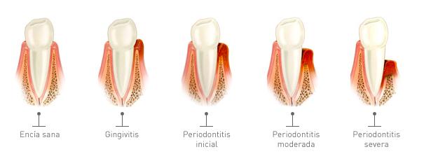 Encías periodoncia