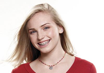 Ortodoncia correctiva niños