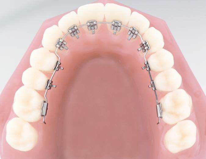 Brackets ortodoncia lingual