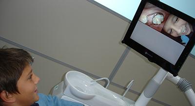 Ortodoncia niños intraoral